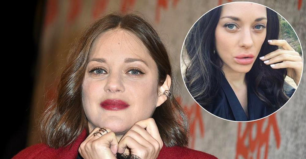 Dr JSK in the media : Marion Cotillard's lips have rattled the internet